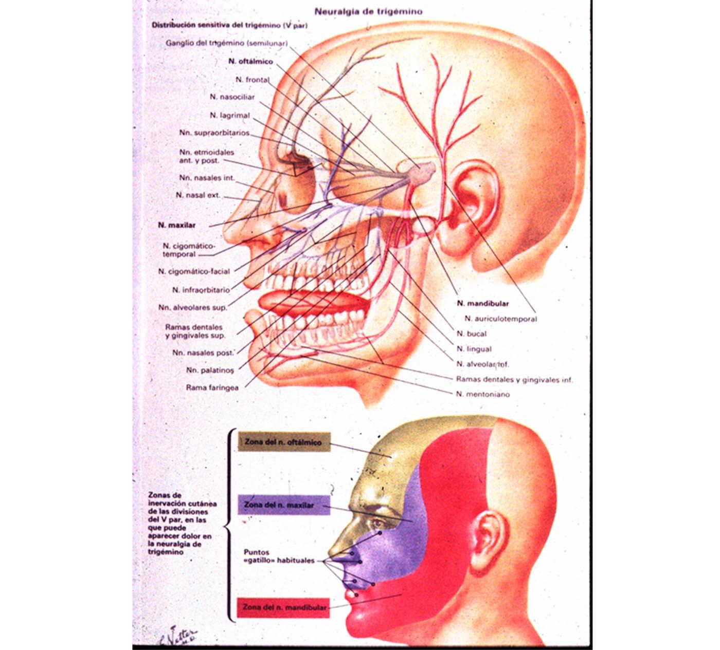 Neuralgia del trig 233 mino la enfermedad m 225 s dolorosa revista